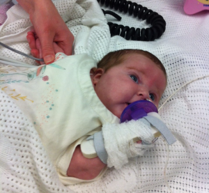 Aimi on dialysis just prior to surgery, having her BP taken. The purple thing is a dummy in case you wondered.